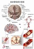 MF 0219 3D Brain disease chart