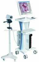 colposcope in china